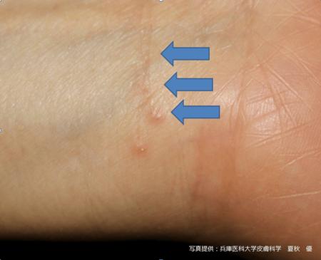 【獣医師監修】猫の疥癬ってどんな病気?症状や治 …